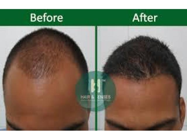 Hair Transplant in India